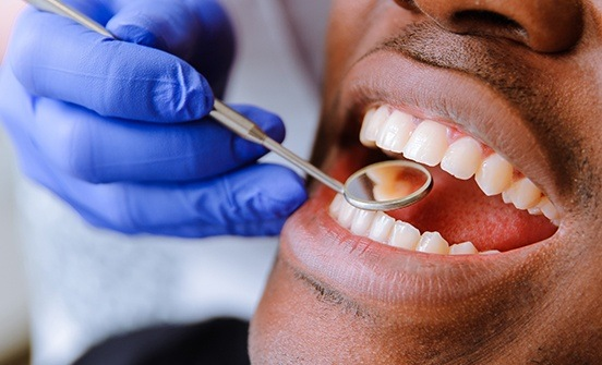 emergency tooth extractions in West Chester